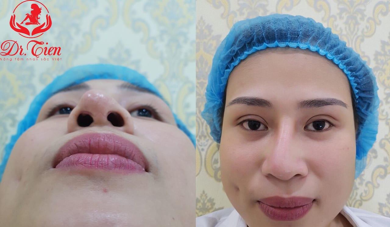 biến chứng lệch mũi sau phẫu thuật nâng mũi
