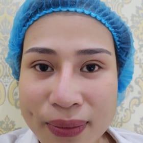 phẫu thuật mũi hỏng cần tái phẫu thuật nâng mũi