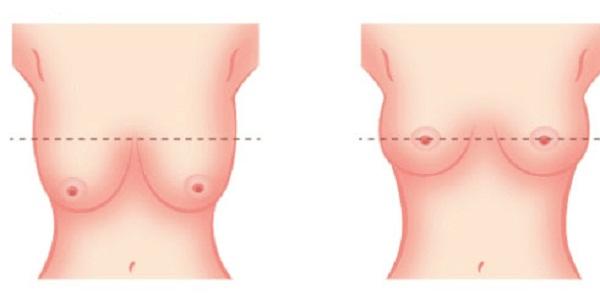 Cận cảnh quy trình nâng ngực sa trễ