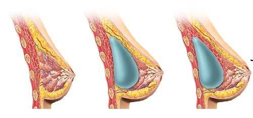 Kích thước sẹo mổ phụ thuộc vào thể tích túi độn và kinh nghiệm bác sĩ