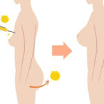 Các phương pháp nâng ngực an toàn được giới chuyên môn đánh giá cao