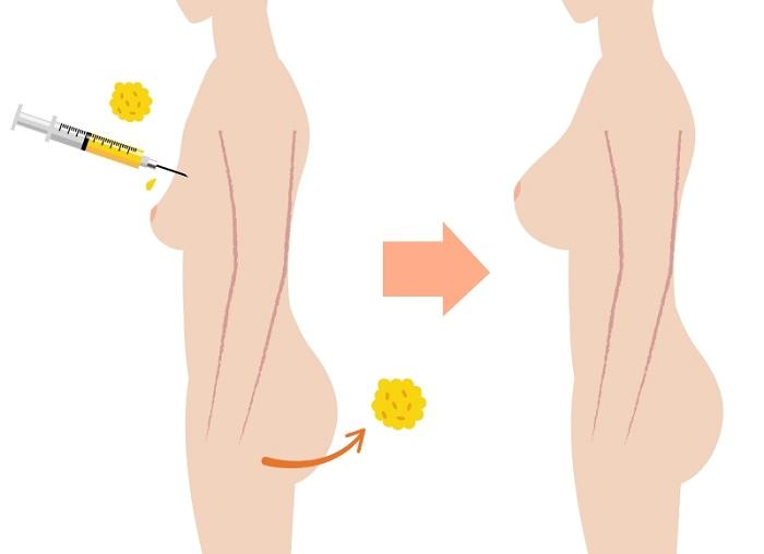 Nâng ngực bằng mỡ tự thân là một trong các phương pháp nâng ngực an toàn