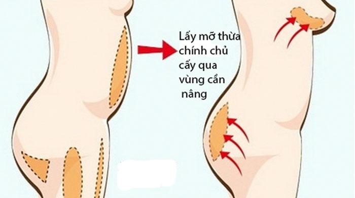 Nâng ngực mỡ tự thân đảm bảo an toàn cho sức khỏe của con người
