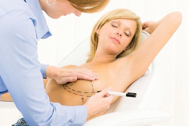 Phương pháp nâng ngực tiên tiến hiện nay