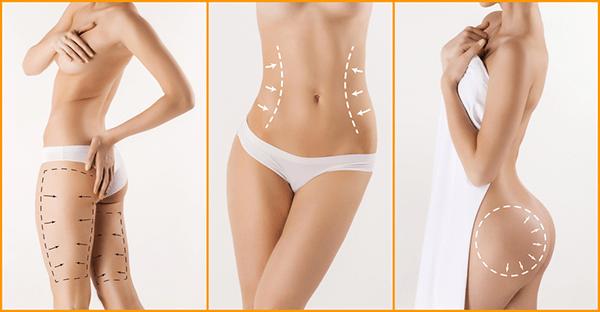 Thực hiện thẩm mỹ hút mỡ ghép mỡ tại nhiều bộ phận khác nhau trên cơ thể
