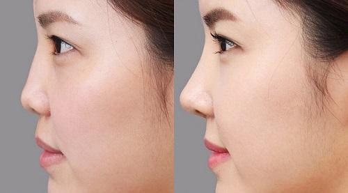 Nâng mũi bán cấu trúc đem lại chiếc mũi đẹp toàn diện cho chị em.