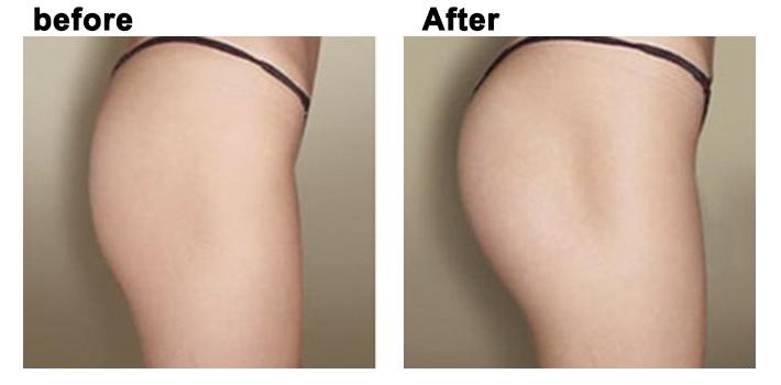 Giá nâng mông phụ thuộc vào nhiều yếu tố.