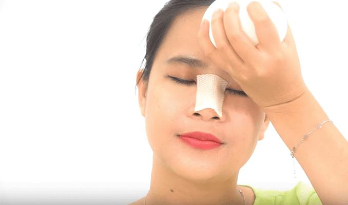 Chườm lạnh thường xuyên để giảm đau sau khi nâng mũi