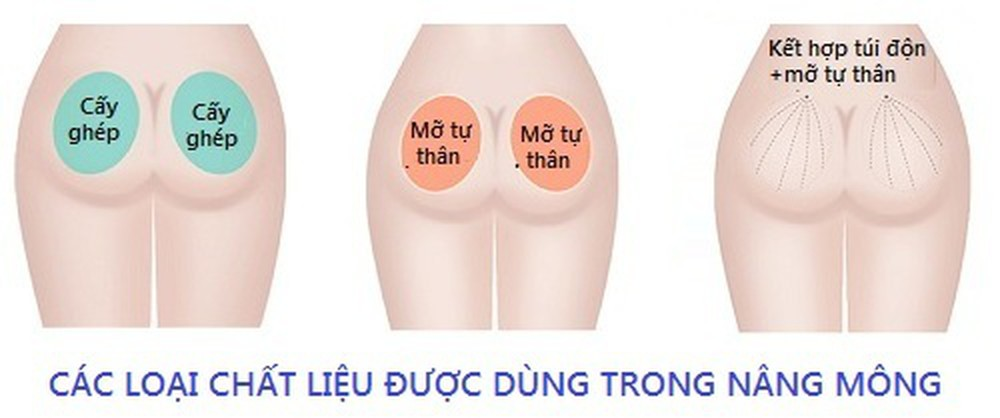 Phương pháp nâng mông nào hiệu quả nhất