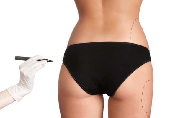 Phẫu thuật nâng mông chảy xệ có đau không?