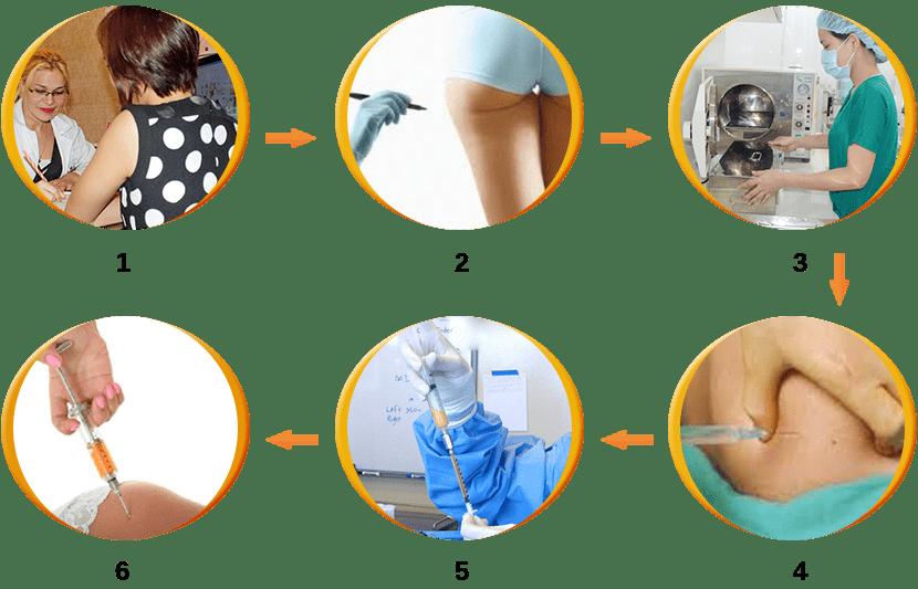 Quy trình phẫu thuật nâng mông bạn nên biết