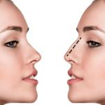 Những đối tượng nên và không nên sử dụng phương pháp nâng mũi bán cấu trúc