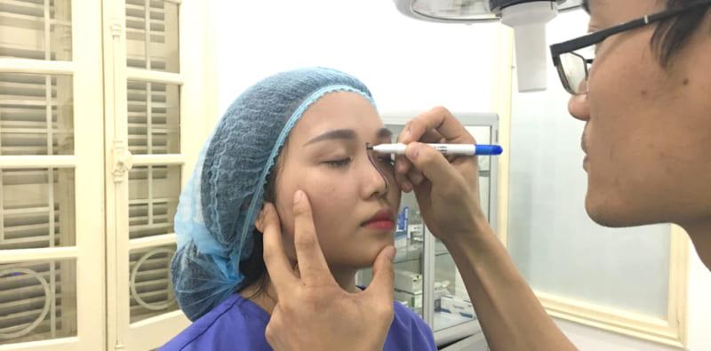 Khi thẩm mỹ mũi không đau vì đã thuốc gây mê