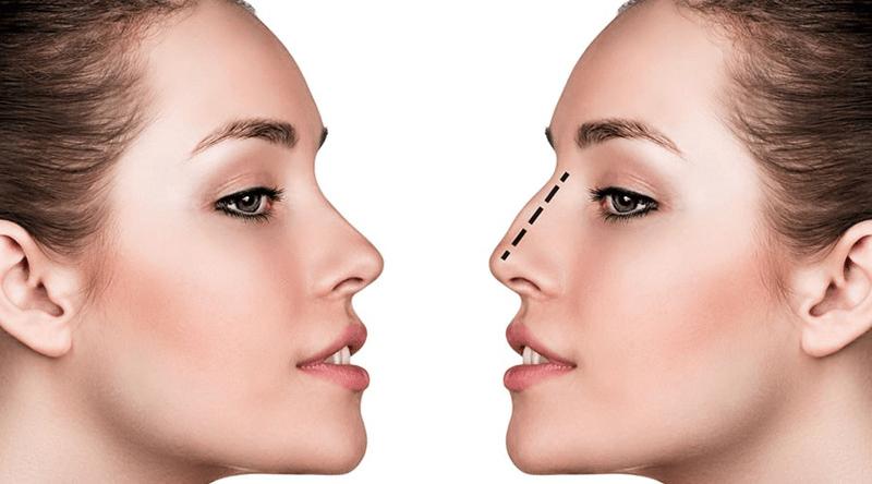 phương pháp nâng mũi bán cấu trúc