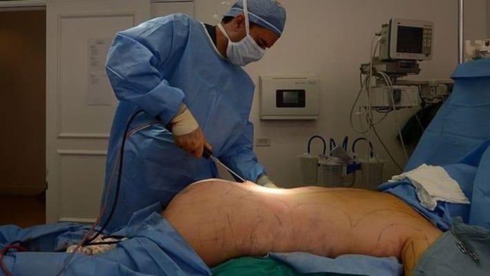 Hãy chọn địa chỉ phẫu thuật uy tín