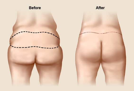 Nàng có cặp mông lép nên phẫu thuật độn mông