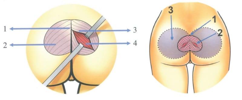 Thường các vết cắt mổ trong quá trình nâng mông sẽ có dạng hình elip