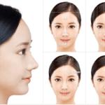 Sau khi phẫu thuật thẩm mỹ mũi cần kiêng ăn gì?