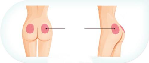 Nâng mông bằng phương pháp cấy mỡ tự thân rất an toàn