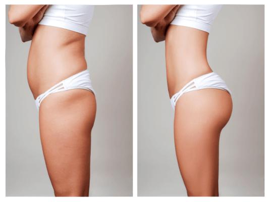 Phương pháp nâng mông bằng cấy mỡ tự thân an toàn tuyệt đối đối với khách hàng