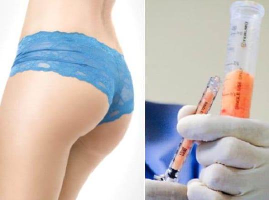 Kỹ thuật nâng mông bằng cấy mỡ tự thân không gây ra chảy máu và không để lại sẹo