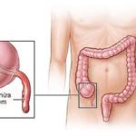 [ Bài giảng ngoại khoa] Bài giảng viêm ruột thừa cấp