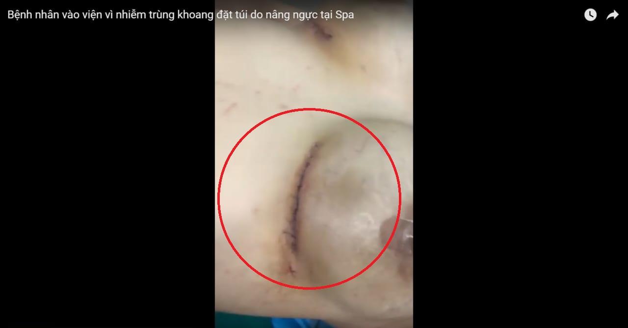 Bệnh nhân vào viện vì nhiễm trùng khoang đặt túi do nâng ngực tại Spa
