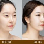 Phương pháp độn cằm hiện đại giúp chị em sở hữu khuôn mặt tỷ lệ vàng