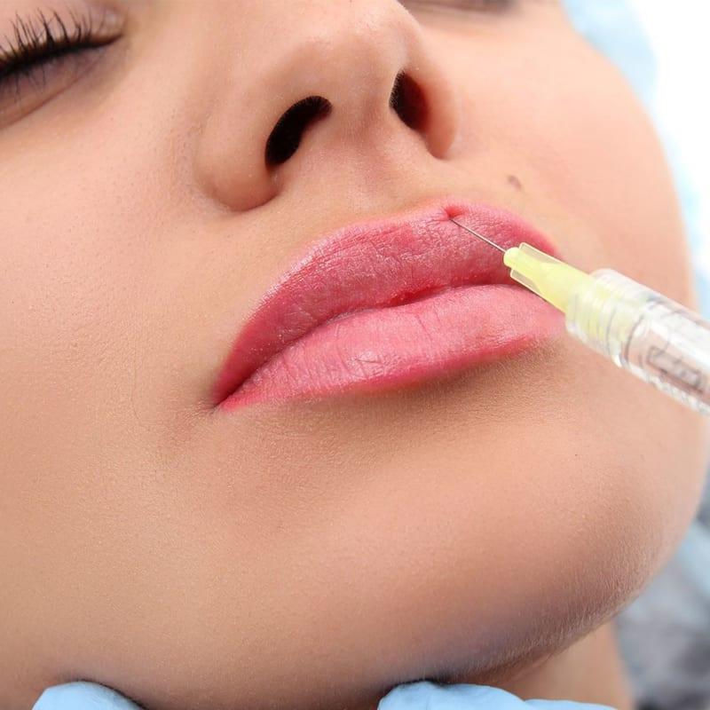 Để có một đôi môi trái tim đẹp các bạn có thể chọn cách phẫu thuật