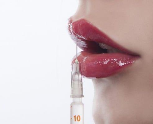 Phẫu thuật môi sẽ giúp cắt bỏ một số mô cơ vành môi, đôi môi bạn sẽ mỏng và hài hòa hơn với khuôn mặt