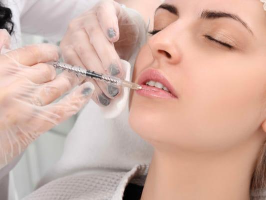 Một số chất thường xuyên được sử dụng để phẫu thuật môi như restylane, filler