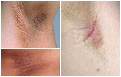 Dr. Tien đảm bảo không đau không để lại sẹo khi thực hiện tiểu phẫu
