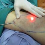 Có những phương pháp phẫu thuật vùng nách nào?