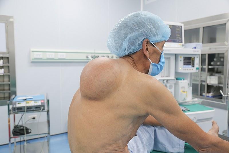 Nhiều người mắc phải khối u mỡ là do di truyền