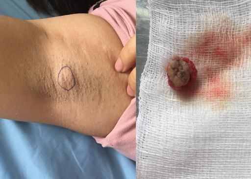 Khi khối u còn nhỏ chính là thời điểm tốt nhất, thích hợp nhất để tiến hành phẫu thuật