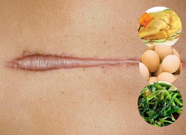 Người bệnh cần hạn chế ăn các loại thực phẩm để lại sẹo lồi và mưng mủ
