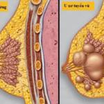 Bệnh u xơ tuyến vú có khả năng ung thư hóa không?