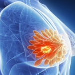 U xơ tuyến vú là gì? Bệnh u xơ tuyến vú có nguy hiểm không?
