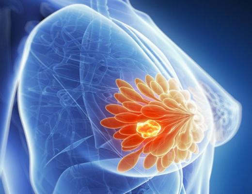 Bệnh u xơ tuyến vú có nguy hiểm không?