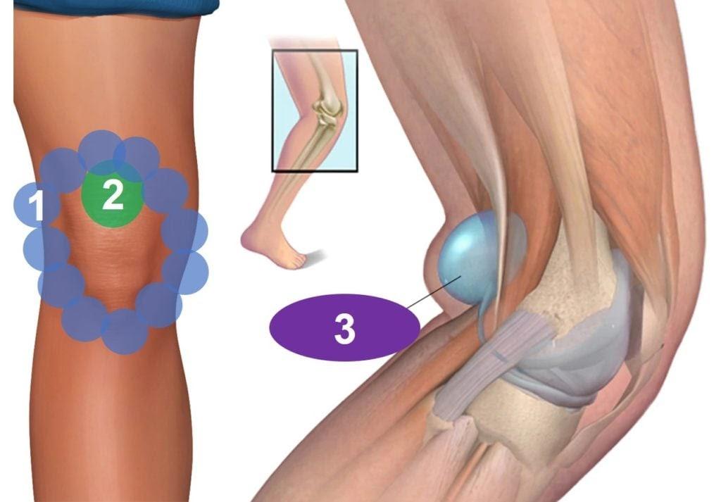 Hiện tượng bệnh u bao hoạt dịch khoeo chân có thể là do bị viêm khớp gối