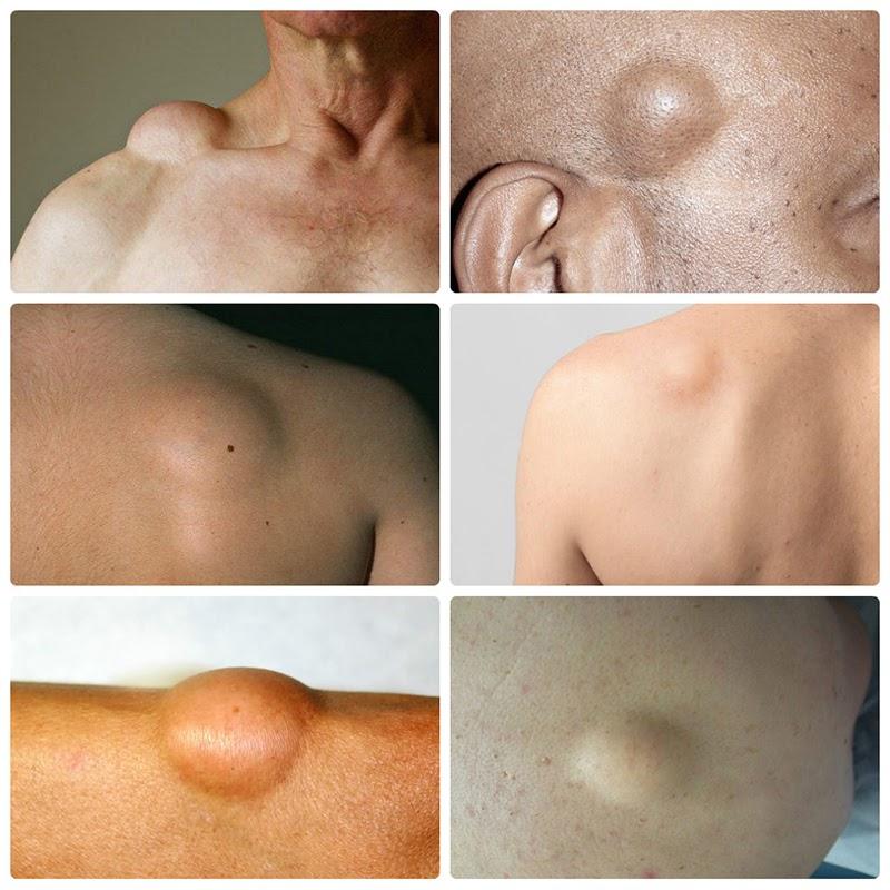 Đa dạng các khối u mỡ phổ biến hiện nay