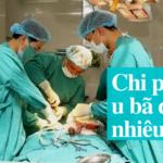 Chi phí tiểu phẫu u bã đậu hết bao nhiêu tiền trên thị trường hiện nay?