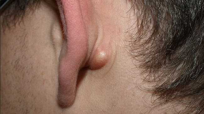 Khối u bã đậu thường xảy ra ở các bạn trẻ bước vào độ tuổi dậy thì