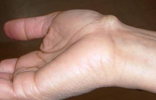 U bao hoạt dịch cổ tay có thể do bong gân hoặc tiểu sử về chấn thương cổ tay