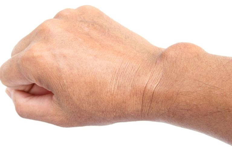 U hoạt dịch cổ tay là khối u lành tính