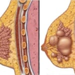 U nang tuyến vú có nguy hiểm không?