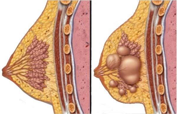 Bệnh thường xảy ra ở phụ nữ từ 35 tuổi trở lên và chưa bị mãn kinh