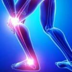 Đối tượng có nguy cơ mắc u bao dịch hoạt khoeo chân