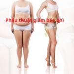Béo phì và phẫu thuật giảm béo phì tại Dr Tiến