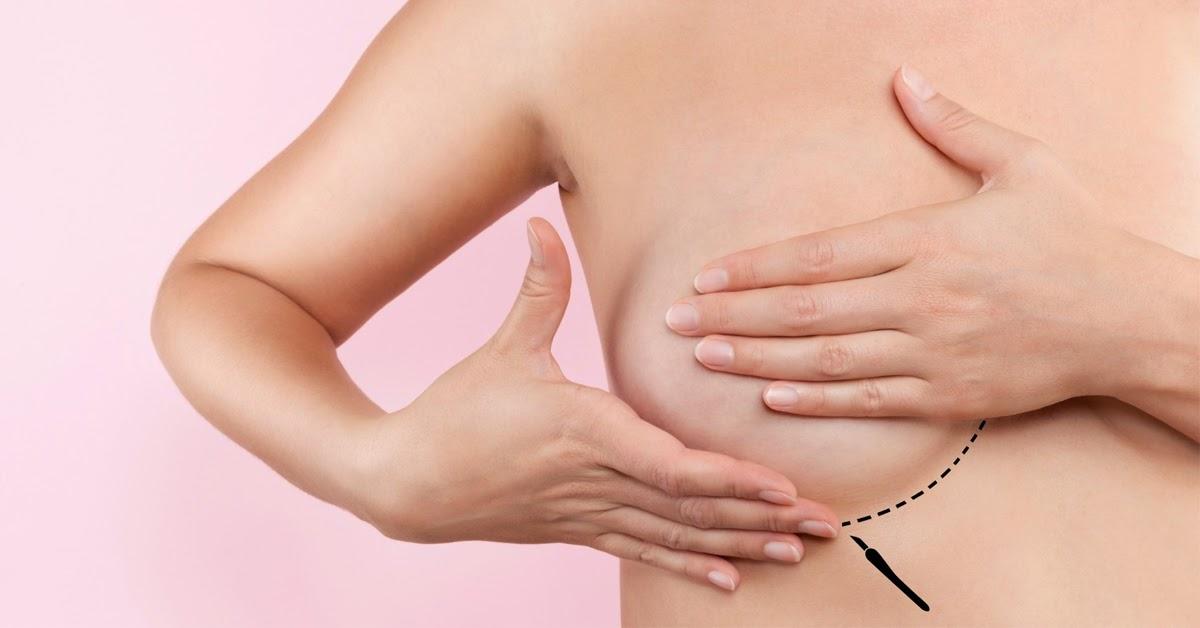 Lời khuyên hữu ích để phòng ngừa u xơ tuyến vú hiệu quả